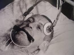 Electroshocktherapy